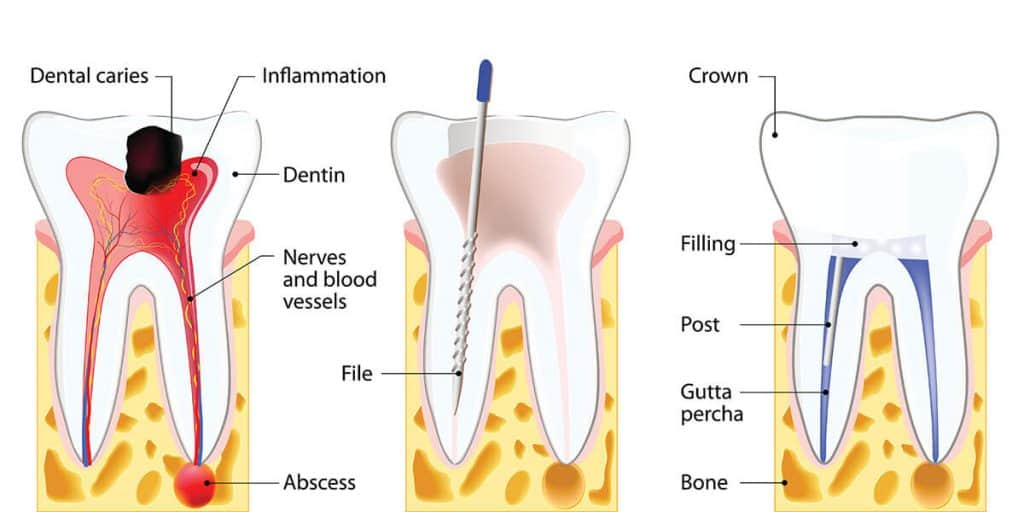 root-canal-treatment-global-family-dental
